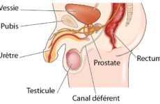 Prévention du cancer de la prostate : Ejaculer au moins 21 fois par mois